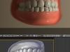 teethdof